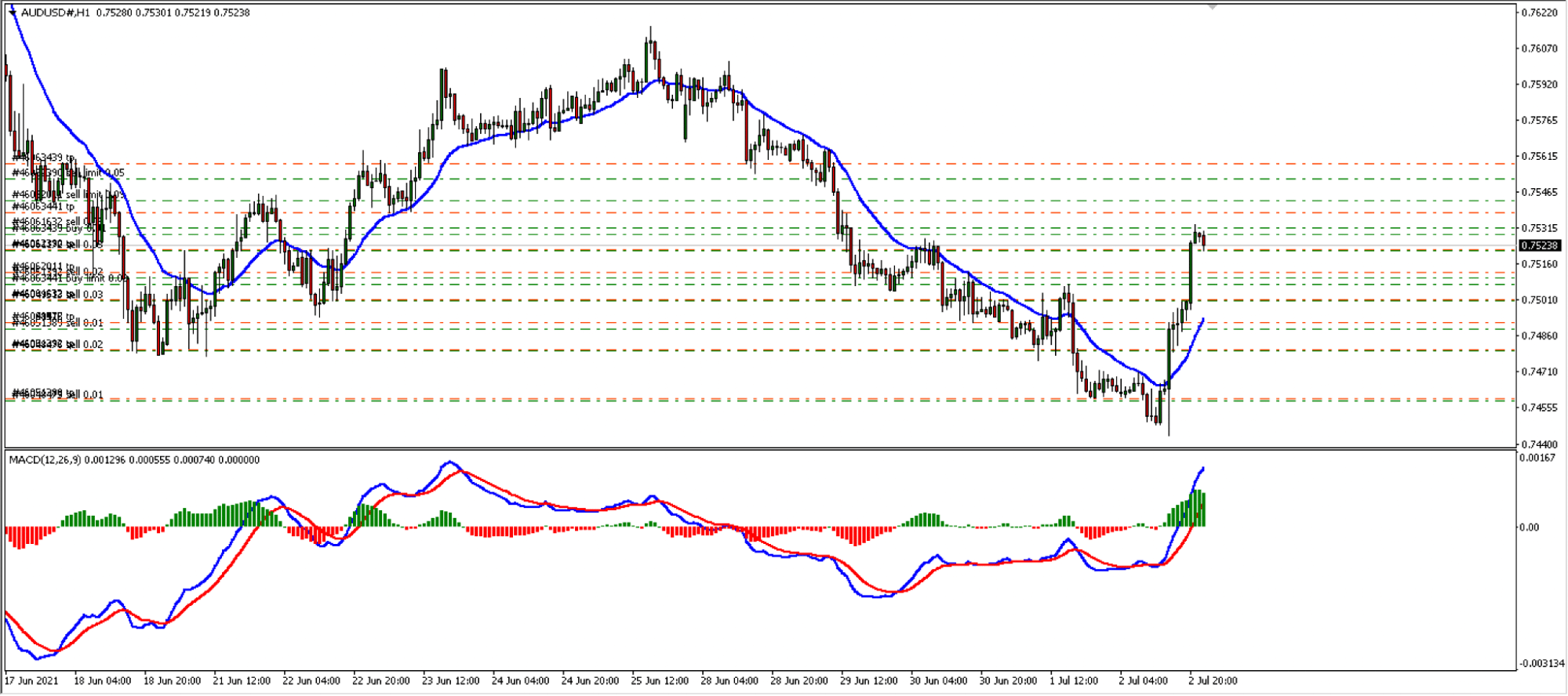 MT4 interface of an FX trading mechanical person.